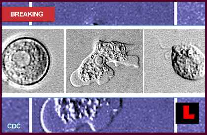 Brain-eating Amoeba Deaths 2013 Prompt Investigation