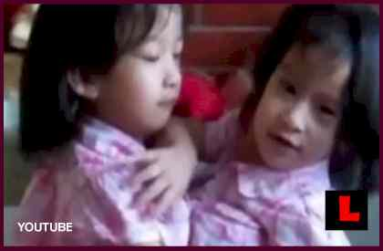 Angelina and Angelica Sabuco, Conjoined Twins, Successful Separated