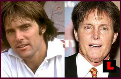 Bruce Jenner Plastic Surgery PHOTOS