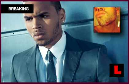 Chris Brown's Chin: Twitter Feud Prompts Injury