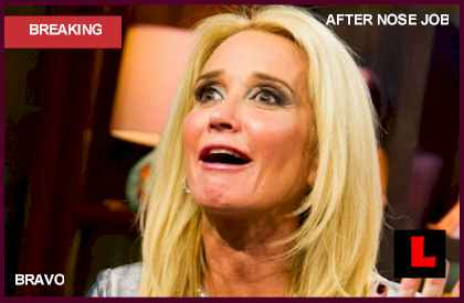 Kim Richards Nose Job Plastic Surgery Surprises Sister