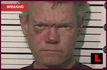 Randy Travis Mugshot DWI Photo Reveals Black Eye Injury