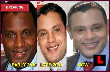 Sammy Sosa Face: Slugger Admits Skin Bleaching Cream Use