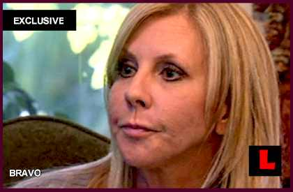 Vicki Gunvalson, Brooks Ayers Not Back Together in Suit: EXCLUSIVE